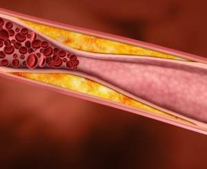 colesterolo1