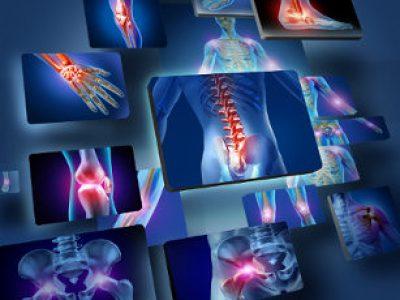 Cosa si nasconde dietro ai dolori alle articolazioni?