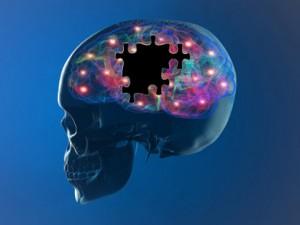 malattie neurodegenerative1